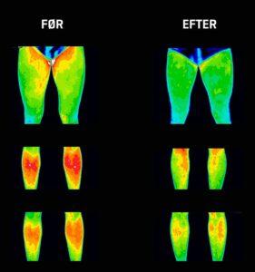 Mindre inflammation i knæ og ben