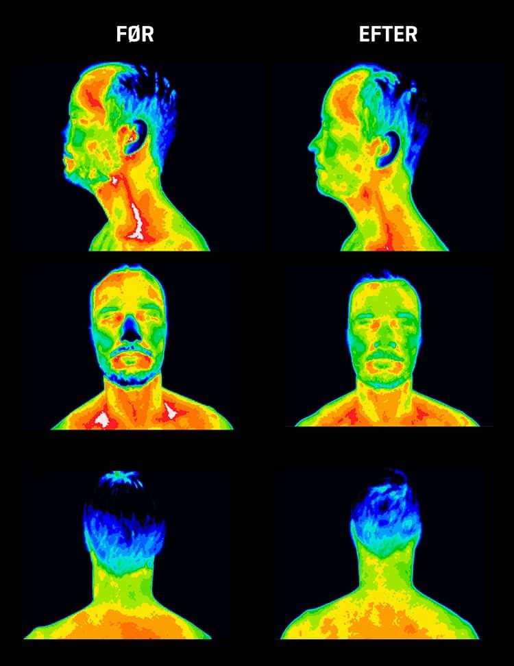 Mindre inflammation i nakke og hoved