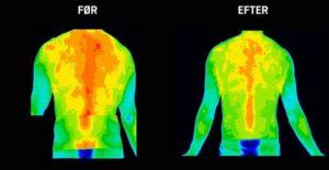 Mindre inflammation i muskler i ryg