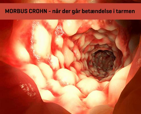Morbus Crohn - når der går betændelse i tarmen